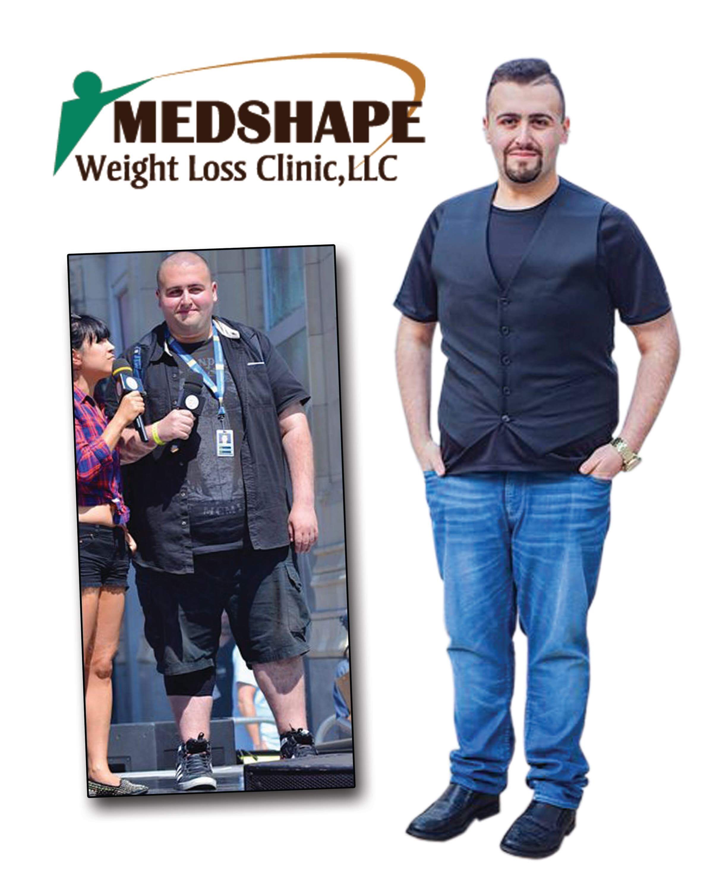 Medshape before / after Photo 9