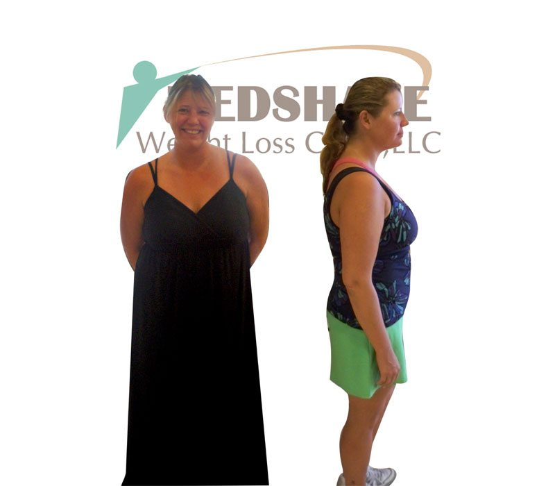 Weight Loss Before and After - Page 5 - MedShape Weight ...