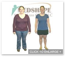 MedShape Weight Loss | Before and After