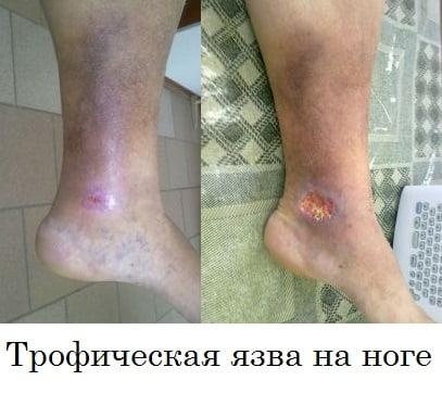 lenmagasságok együttes kezelése súlyos fájdalom az ujj ízületében