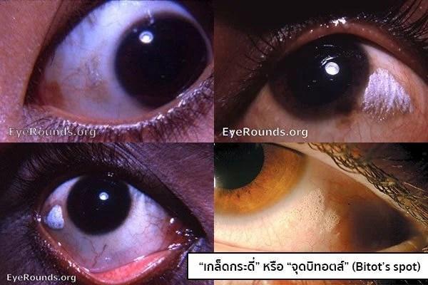 โรคเกล็ดกระดี่ขึ้นตา