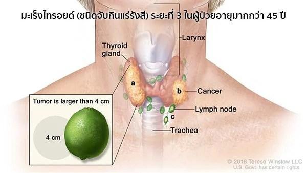 มะเร็งไทรอยด์ระยะที่3