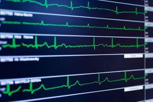 fibrillation atriale- tachycardie supra ventriculaire