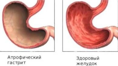 Photo of Як зрозуміти, що у вас розвинувся атрофічний гастрит? Чим небезпечне це захворювання?