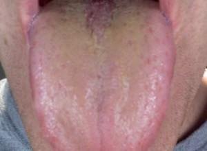 Photo of Жовтий наліт на язиці