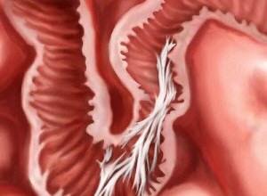 Photo of Спайки кишечника: симптоми і лікування