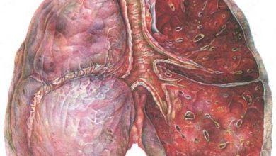 Photo of Алергічний трахеідний бронхіт: як допомогти імунітету впоратися з хворобою?