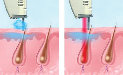 Photo of Вросле волосся — лікування лазером