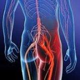 Photo of Основні способи лікування защемлення сідничного нерва