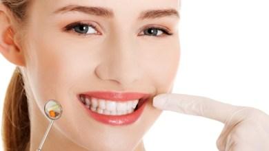 Photo of Скільки болить зуб після видалення нерва?