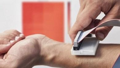 Photo of Новий пристрій може виявити рак шкіри за допомогою датчиків температури