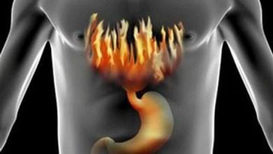 Photo of Препарати від печії можуть стати причиною розвитку раку шлунка