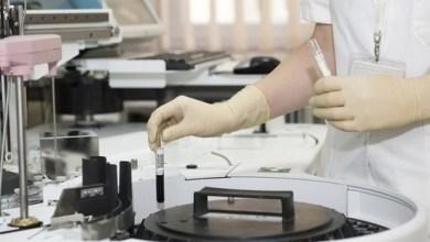 Photo of Вчені: ліки від малярії допоможе перемогти рак