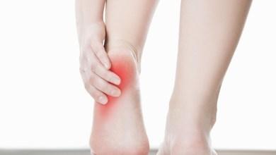 Photo of Болить п'ята і боляче наступати – причини і лікування