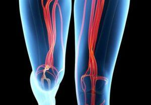 Photo of Причини появи аневризми стегнової артерії і методи позбавлення від неї