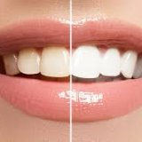 Photo of Відбілювання зубів і зміцнення зубної емалі