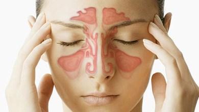 Photo of Головні болі при гаймориті: симптоми і лікування