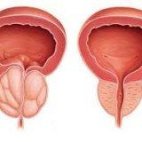 Photo of Народні поради лікування простатиту
