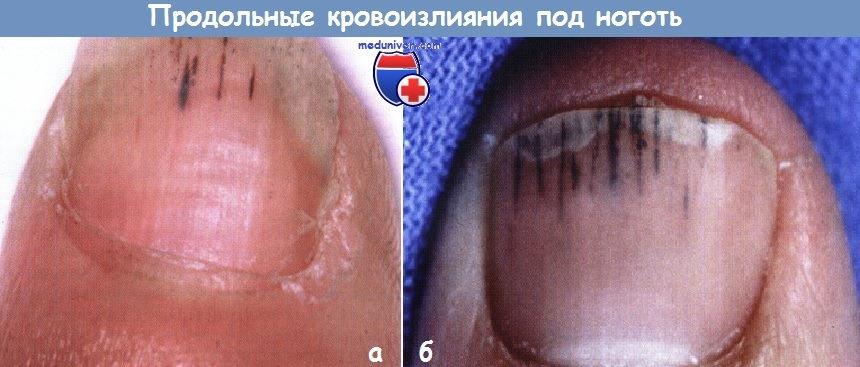 Кровь под ногтем гематома под ногтем  что делать как избавиться