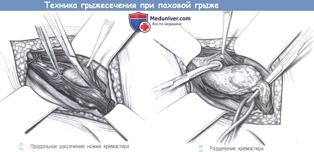 Когда снимают швы после операции паховой грыжи