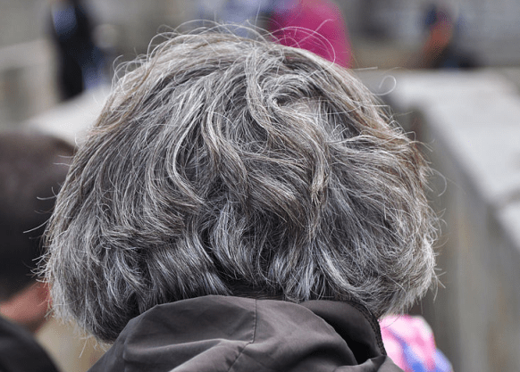 Grey Hair Causes At Young Age