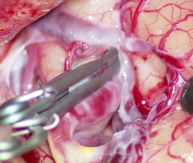 Hd Medical Video With Leica Oh5 And Ikegami Mkc 500hd By Med X Change Inc