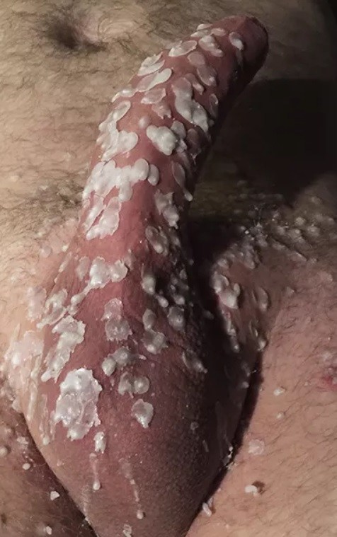 Candle Wax on penis