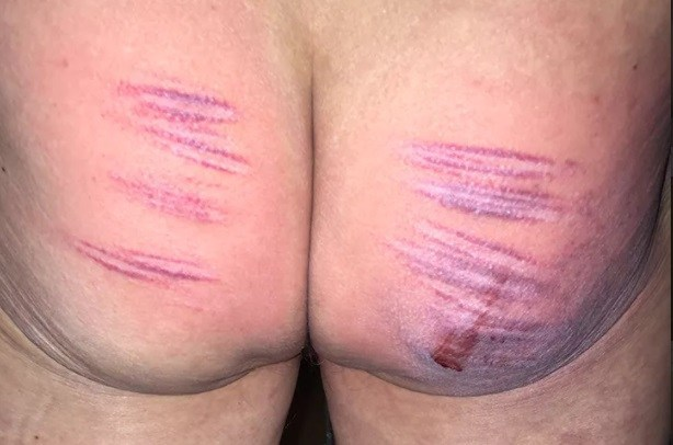 Caned Arse of slave
