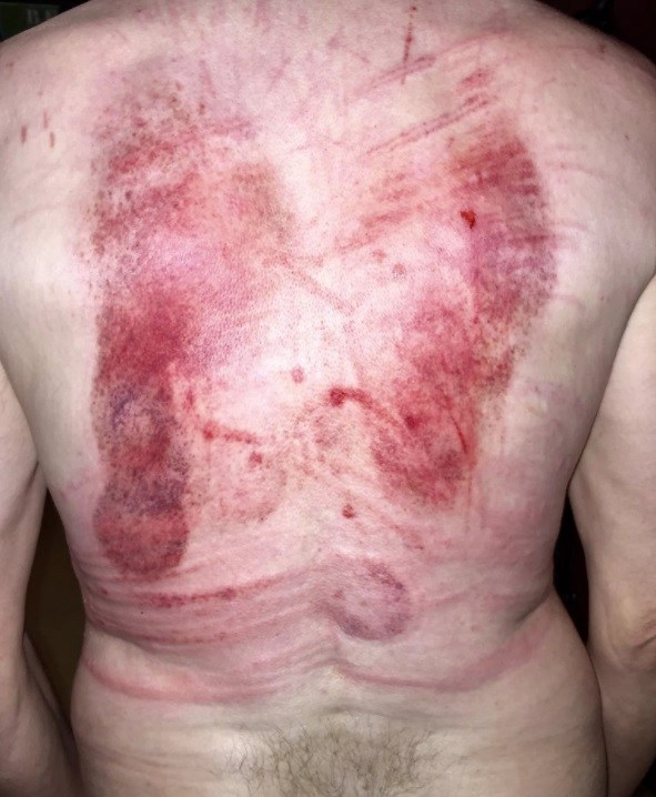 Marks of Canes, Bullwhip & Suction Cups