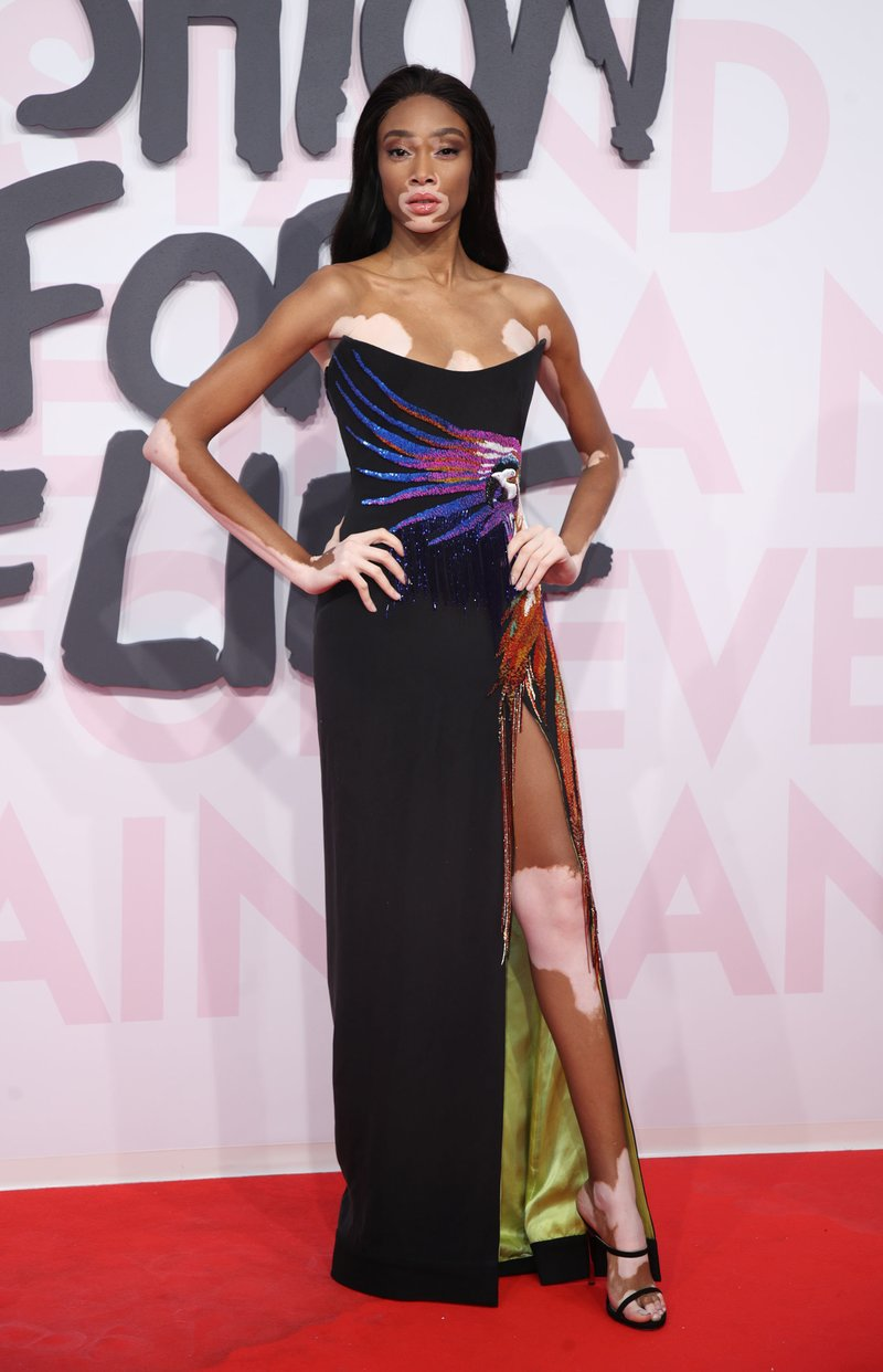 Winnie Harlow attends Fashion For Relief Cannes 2018 during the 71st annual Cannes Film Festival. Photo by Mike Marsland/WireImage