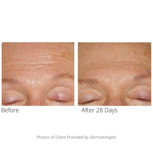 Advanced formula before and after forehead lines