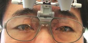 専用のルーペに近視レンズ 装着後 正面から