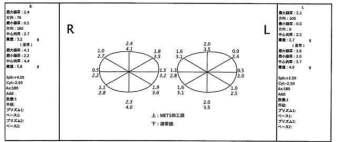 遠視性乱視 レンズレイアウト図