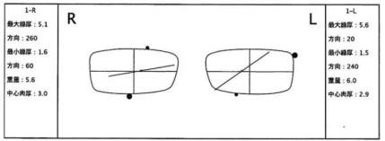 レンズメーターで中心を捉え印をする