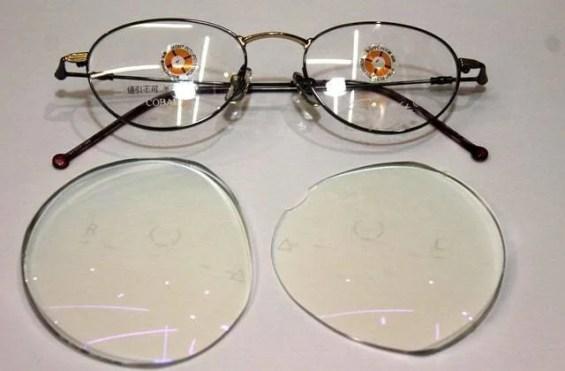 バセドウ病眼症眼窩減圧術後の眼鏡用レンズとフレーム
