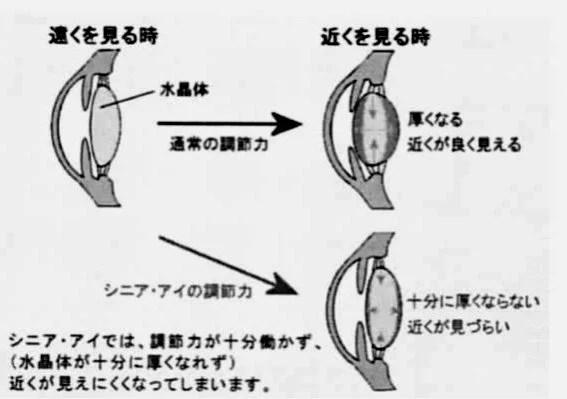 調節の機序 ピント合わせをする水晶体の弾力性がなくなった状態