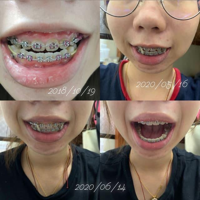 牙套戴了2年7個月 心得 - 牙齒矯正板 | Dcard