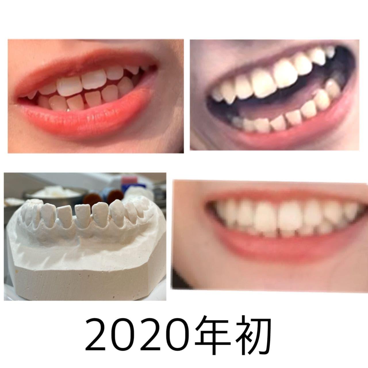 #分享 舌柵四個月牙縫變化 - 牙齒矯正板 | Dcard