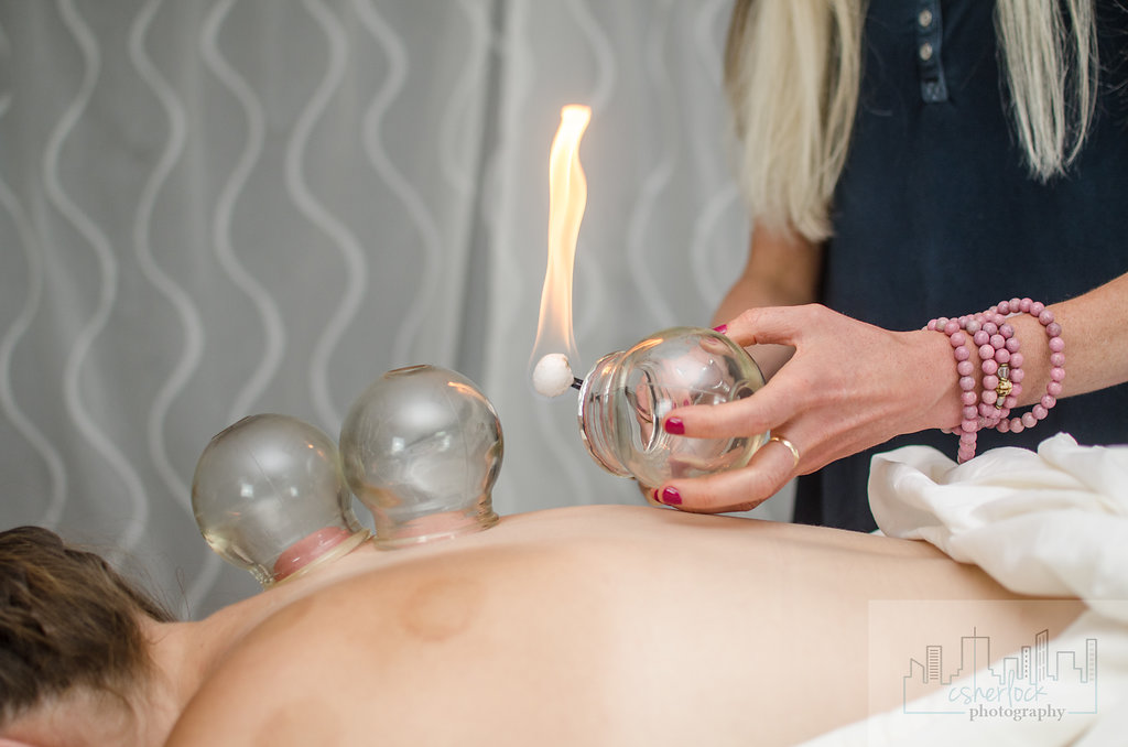 chaceacupuncture-81917-92