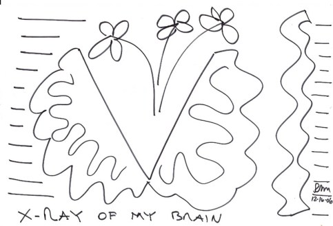X-Ray of My Brain, 2006