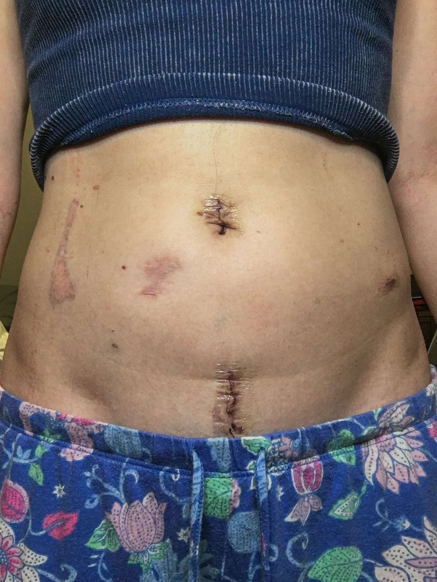 A close up of the author's abdomen after going through surgery for a small bowel obstruction.