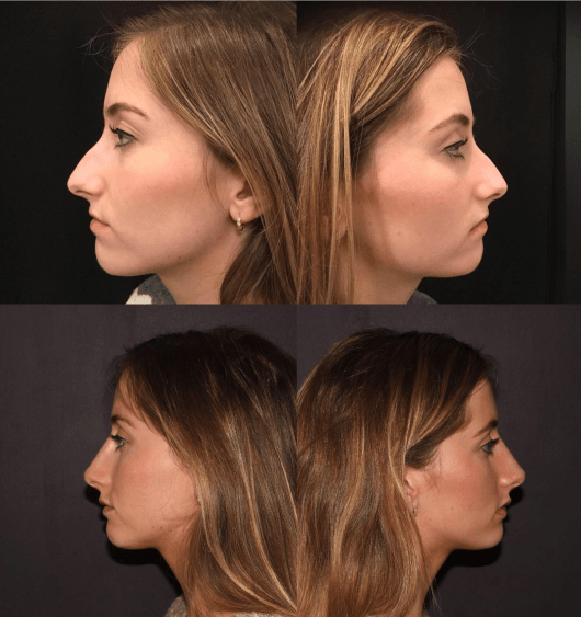Before & After Nose