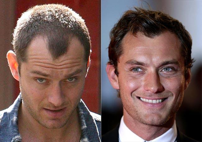 trasplante-pelo-famosos-frenar-caida-pelo