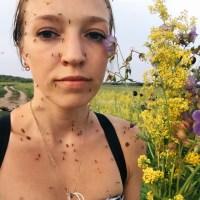 Foto: Joven llena de mosquito posa para una selfie
