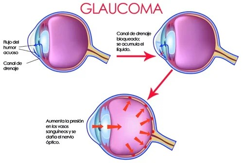 How to reduce eye pressure to prevent glaucoma