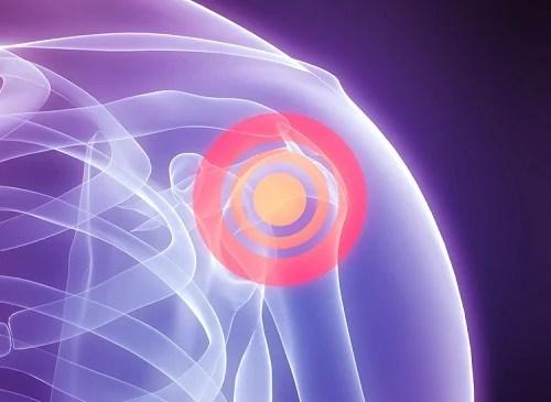 Remédios naturais para dor no ombro