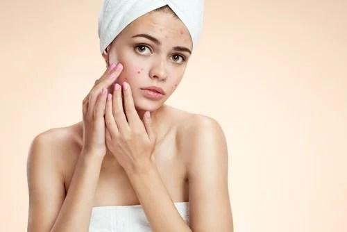 Combatir-el-acné