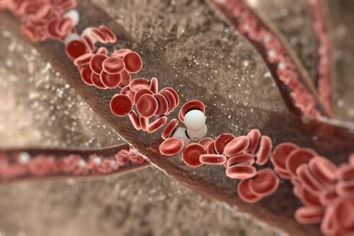 limpiar las paredes arteriales