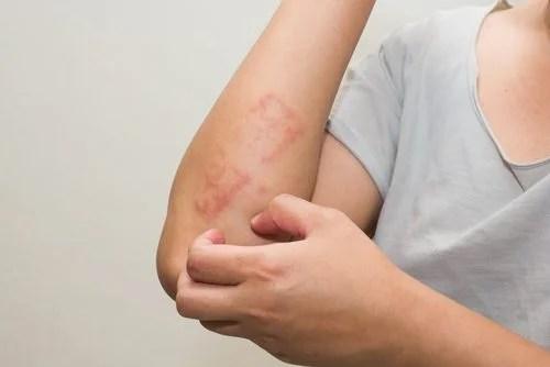 Qué es la psoriasis y por qué se produce