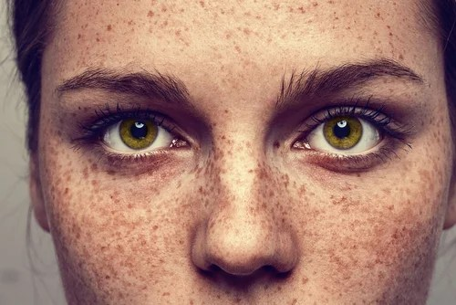 Es posible eliminar las pecas de manera totalmente natural